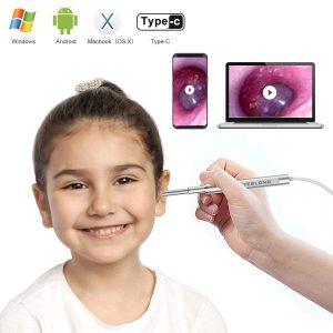 Teslong Ultra-Slim Digital Otoscope| ear wax remover as seen on tv | ear wax remover walmart